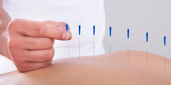 Akupunktur Tedavisi hangi Nedenlerle Yapılır?