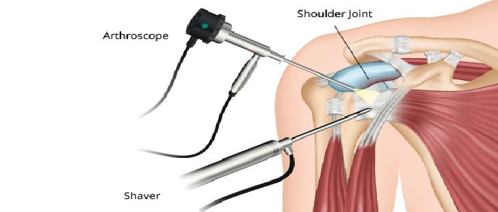 Umuz Cerrahisinde Artroskopi