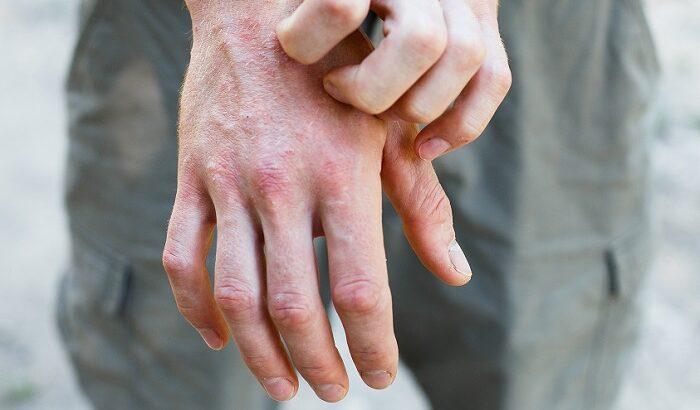 Kaşıntınızın Sebebi Atopik Dermatit Olabilir