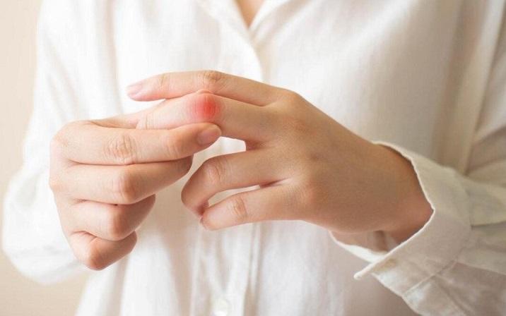 Lupus Hastalığı Nedir? Belirtileri Nelerdir?