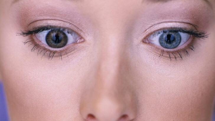 İki Gözün Farklı Renkte Olmasının Sebebi Nedir?