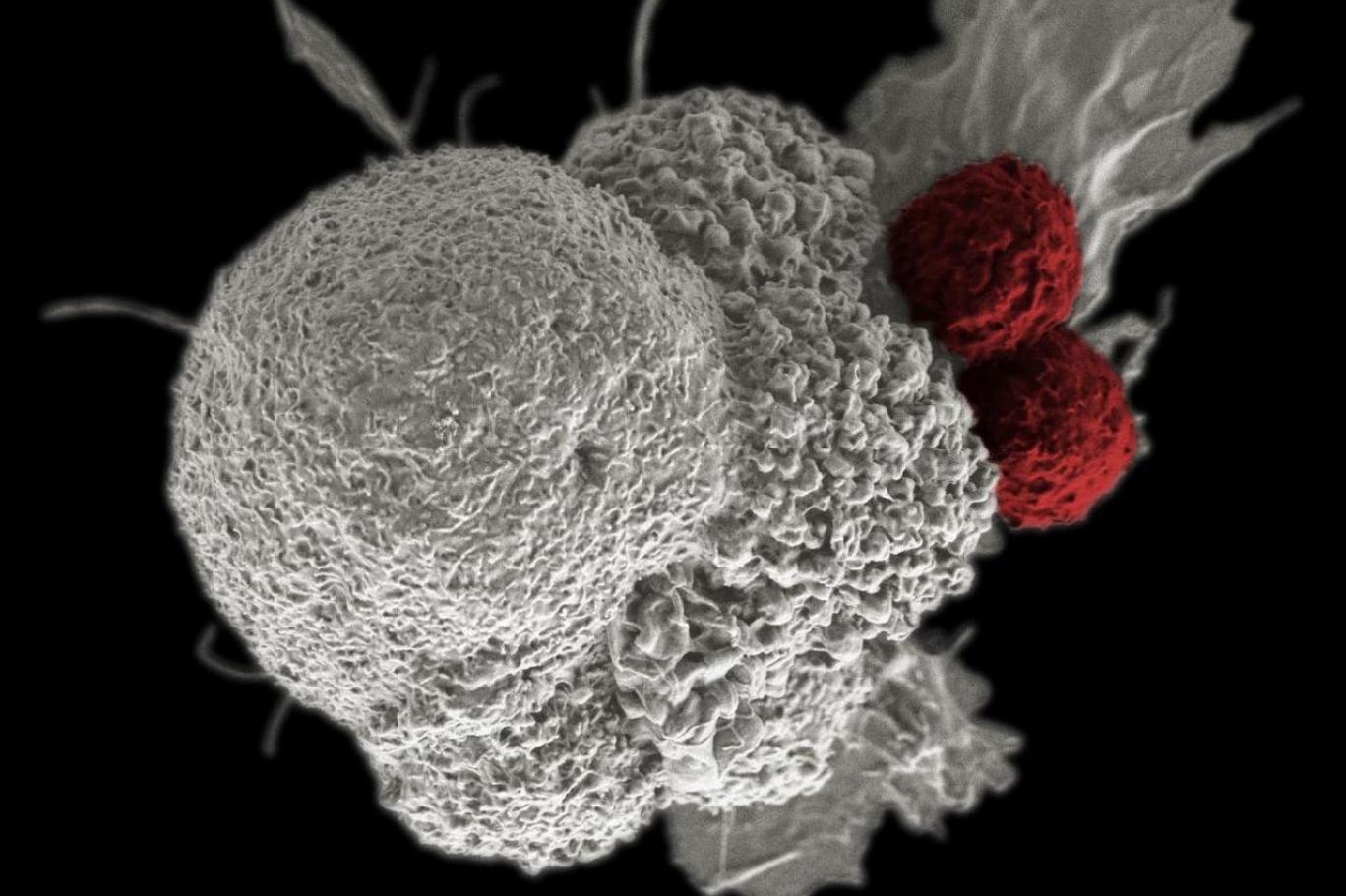 Hangi Kanserde Hangi Belirtiler Görülebiliyor?