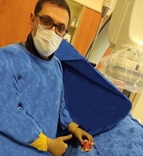 Sanko Üniversitesi Hastanesi'nde Başparmaktan Anjiyo Yapıldı