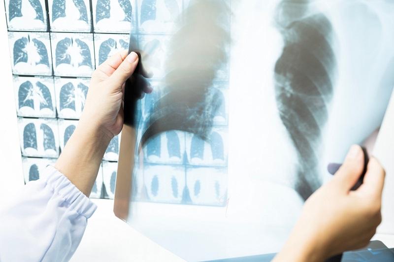 Akciğer Kanserinde Tarama Yaşı 50'ye Düştü