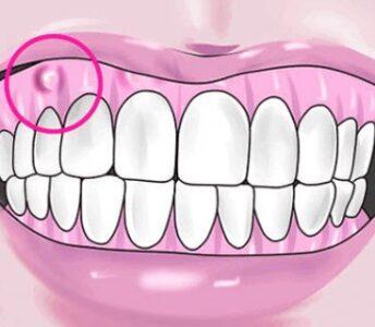 Diş Apsesi Nedir? Diş Apsesi Nasıl Geçer?